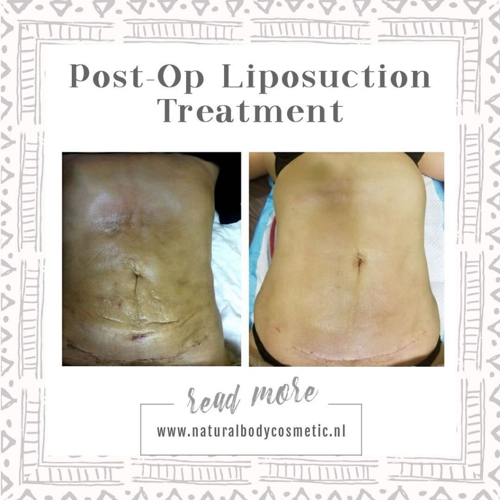 Post Op Liposuction
