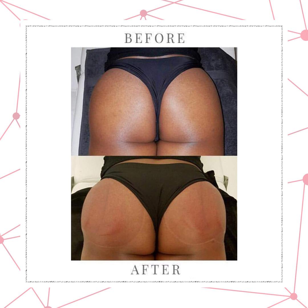 Brazilian Butt- lift & Hip Dip behandeling