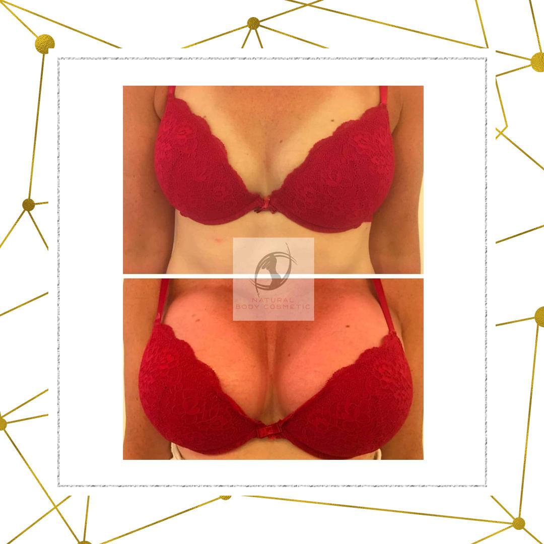 Breast lift behandeling
